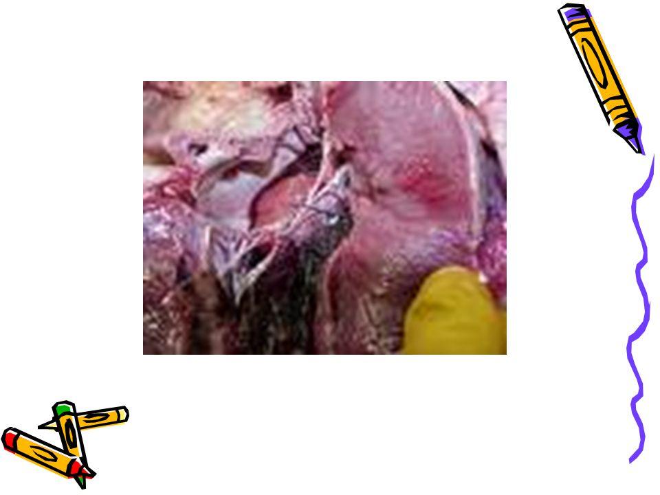 Primer kutanöz nokardiosis Organizmaların subkutan dokuya travmatik girişi ile gelişir.