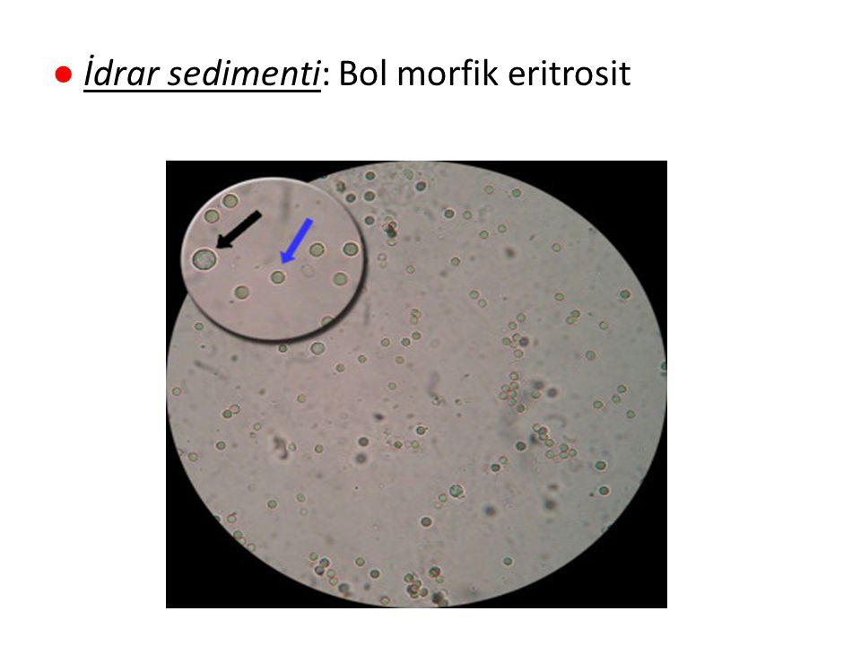 ● İdrar sedimenti: Bol morfik eritrosit