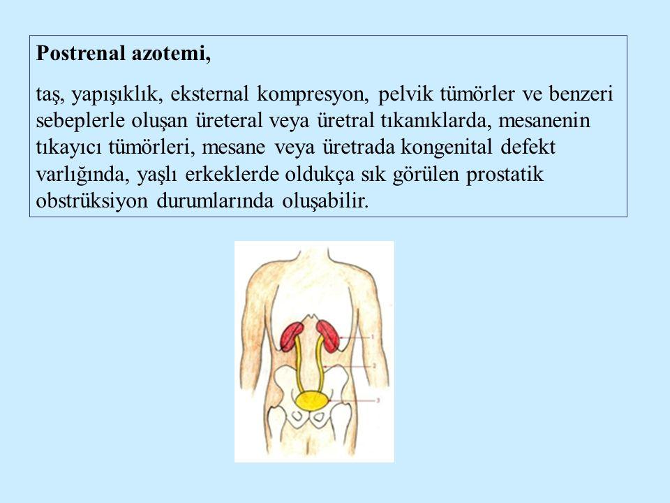Postrenal azotemi, taş, yapışıklık, eksternal kompresyon, pelvik tümörler ve benzeri sebeplerle oluşan üreteral veya üretral tıkanıklarda, mesanenin t