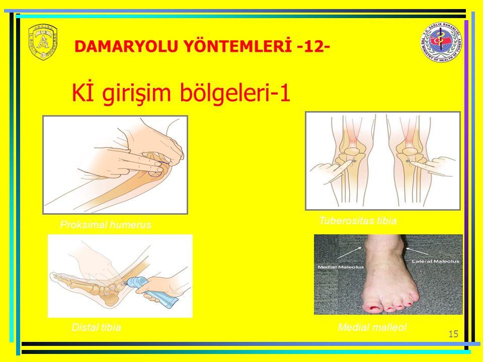 15 Kİ girişim bölgeleri-1 Proksimal humerus Tuberositas tibia Distal tibiaMedial malleol DAMARYOLU YÖNTEMLERİ -12-