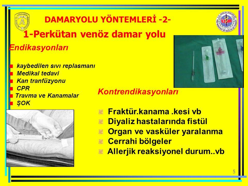 16 Kİ girişim bölgeleri-2 Distal femur Spinal illiaca antero superior Sternum Pretibal bölgeler DAMARYOLU YÖNTEMLERİ -13-
