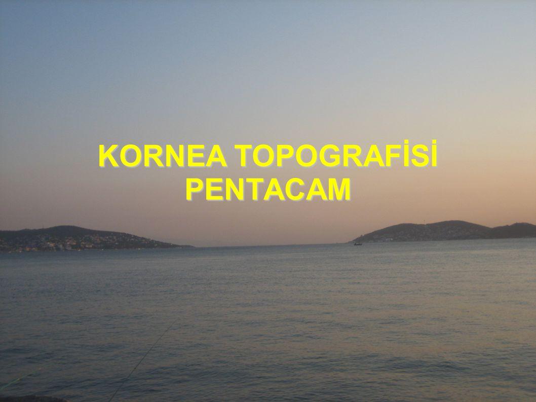 KORNEA TOPOGRAFİSİ PENTACAM