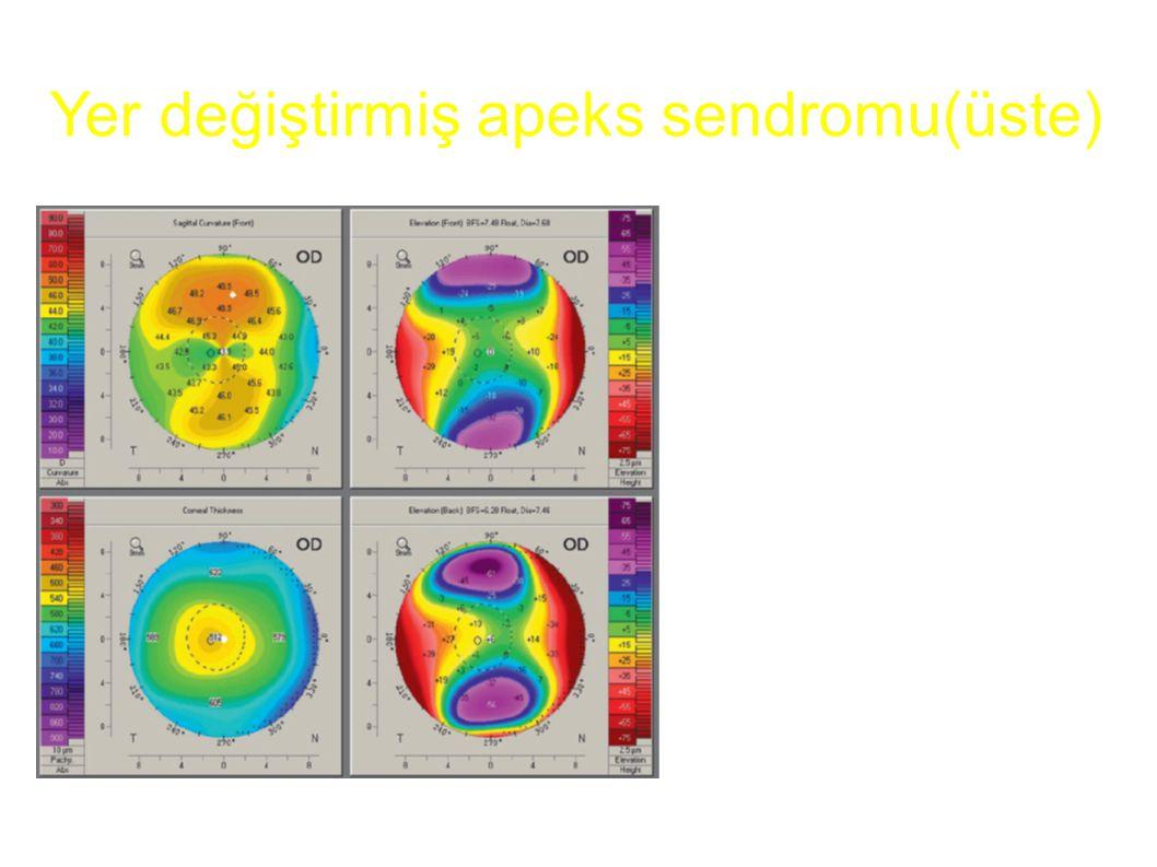 Sagitalde referans aks ve kornea tepesi üst üste gelmemiş olup, asimetrik papyon gibi durmaktadır Diğer veriler tamamen normaldir Yer değiştirmiş apek