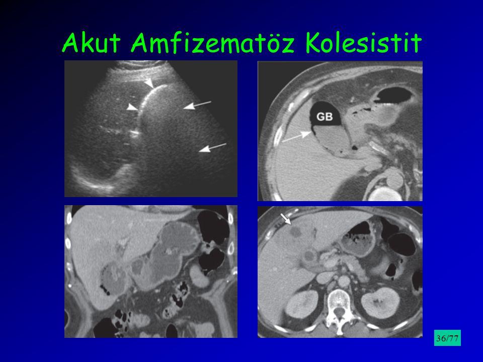 Akut Amfizematöz Kolesistit /9536/77