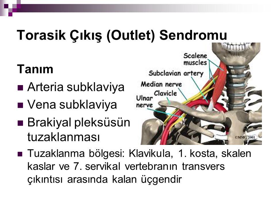 Torasik Çıkış (Outlet) Sendromu Tanım Arteria subklaviya Vena subklaviya Brakiyal pleksüsün tuzaklanması Tuzaklanma bölgesi: Klavikula, 1. kosta, skal