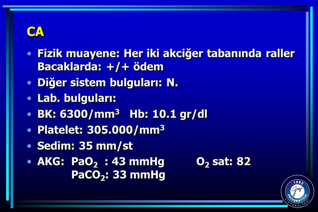 CA Fizik muayene: Her iki akciğer tabanında raller Bacaklarda: +/+ ödem Diğer sistem bulguları: N. Lab. bulguları: BK: 6300/mm 3 Hb: 10.1 gr/dl Platel