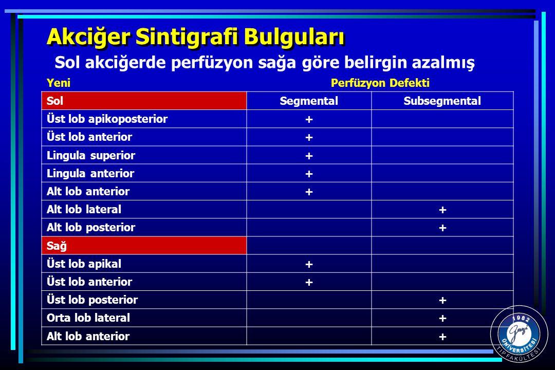Akciğer Sintigrafi Bulguları YeniPerfüzyon Defekti SolSegmentalSubsegmental Üst lob apikoposterior+ Üst lob anterior+ Lingula superior+ Lingula anteri