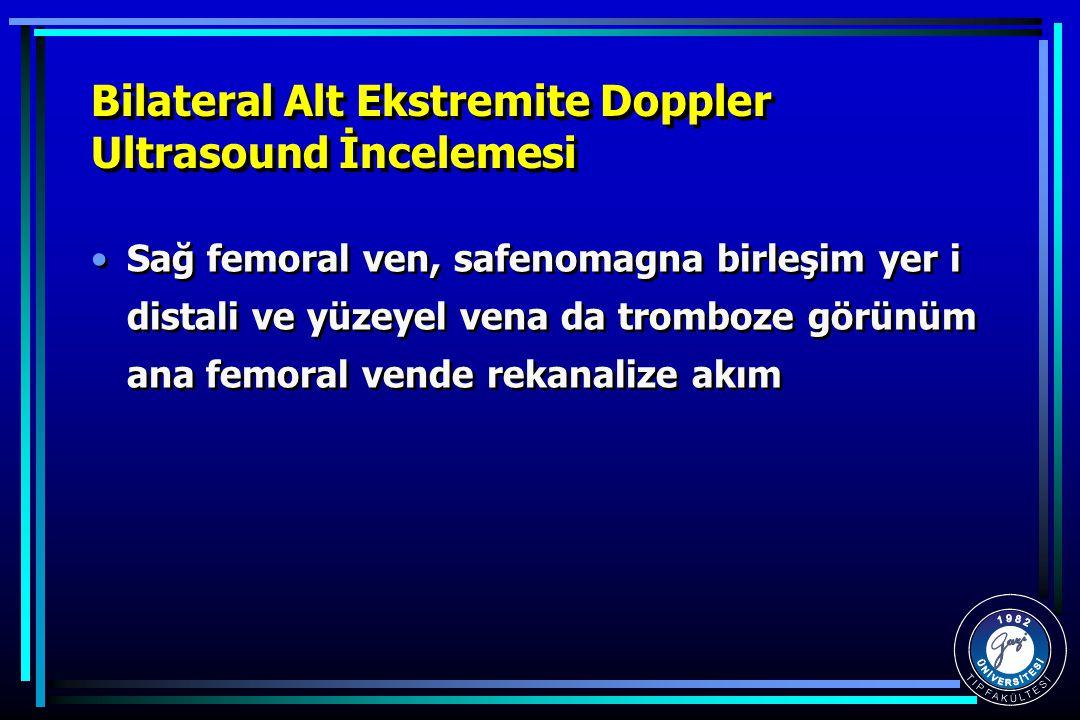 Bilateral Alt Ekstremite Doppler Ultrasound İncelemesi Sağ femoral ven, safenomagna birleşim yer i distali ve yüzeyel vena da tromboze görünüm ana femoral vende rekanalize akım