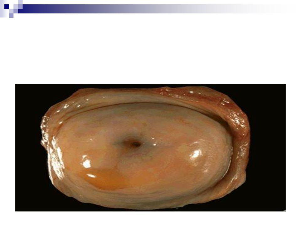 ENDOMETRİUM KANSERİNDE RADYOTERAPİ Klinik Prezentasyon İlk semptom genelikle vajinal kanamadır.