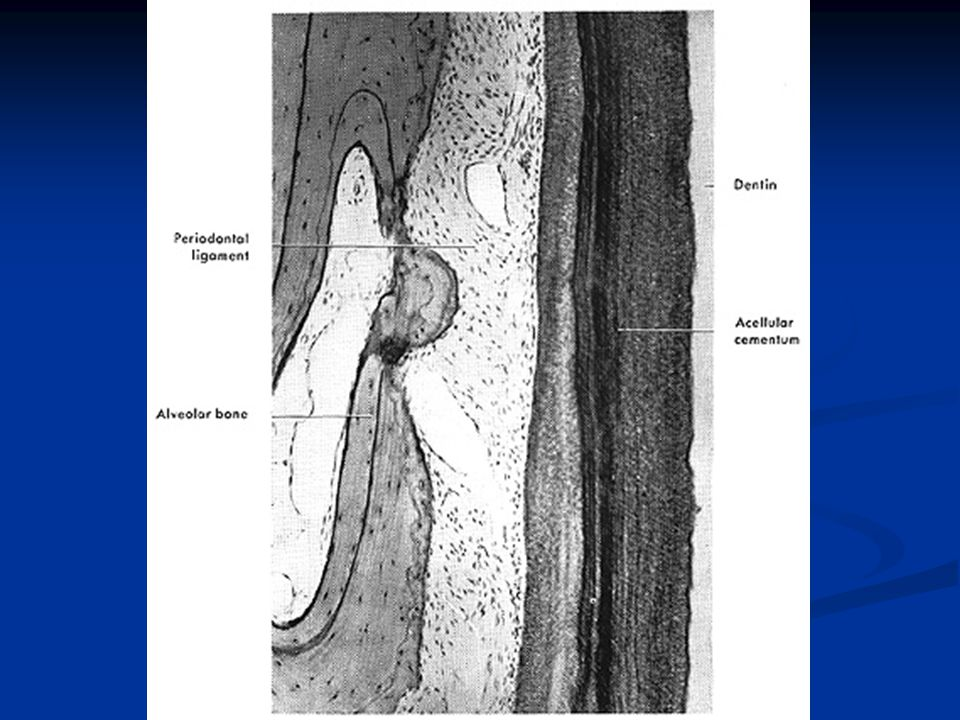 Makrofajlardan sonra multinükleer hücreler (osteoklastların) semente ve sonunda dentine saldırdıkları gösterilmiştir.