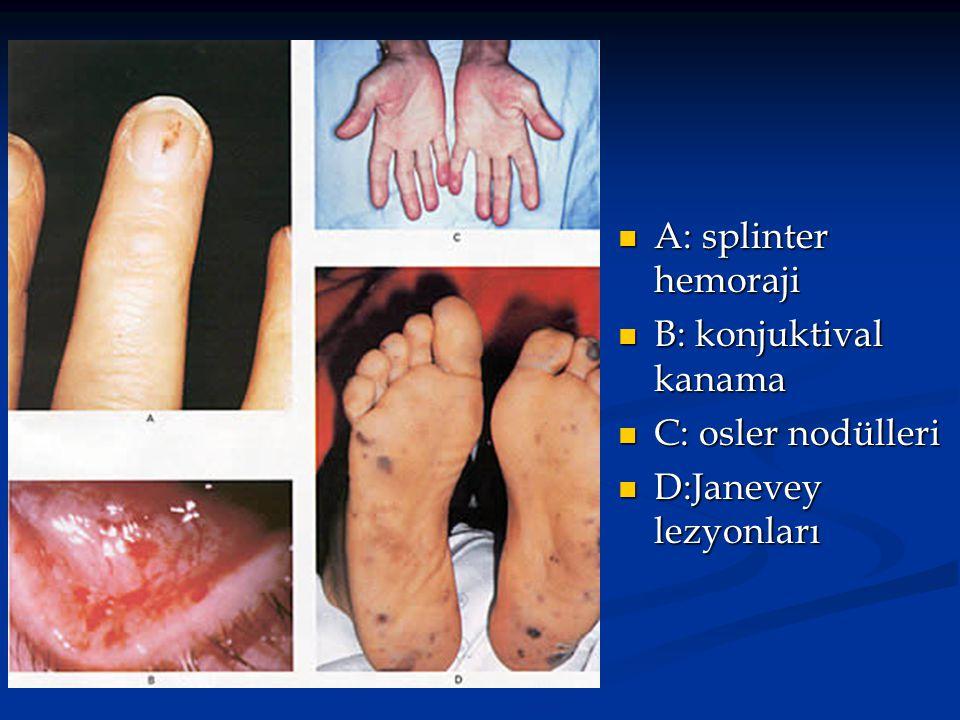 A: splinter hemoraji A: splinter hemoraji B: konjuktival kanama B: konjuktival kanama C: osler nodülleri C: osler nodülleri D:Janevey lezyonları D:Jan