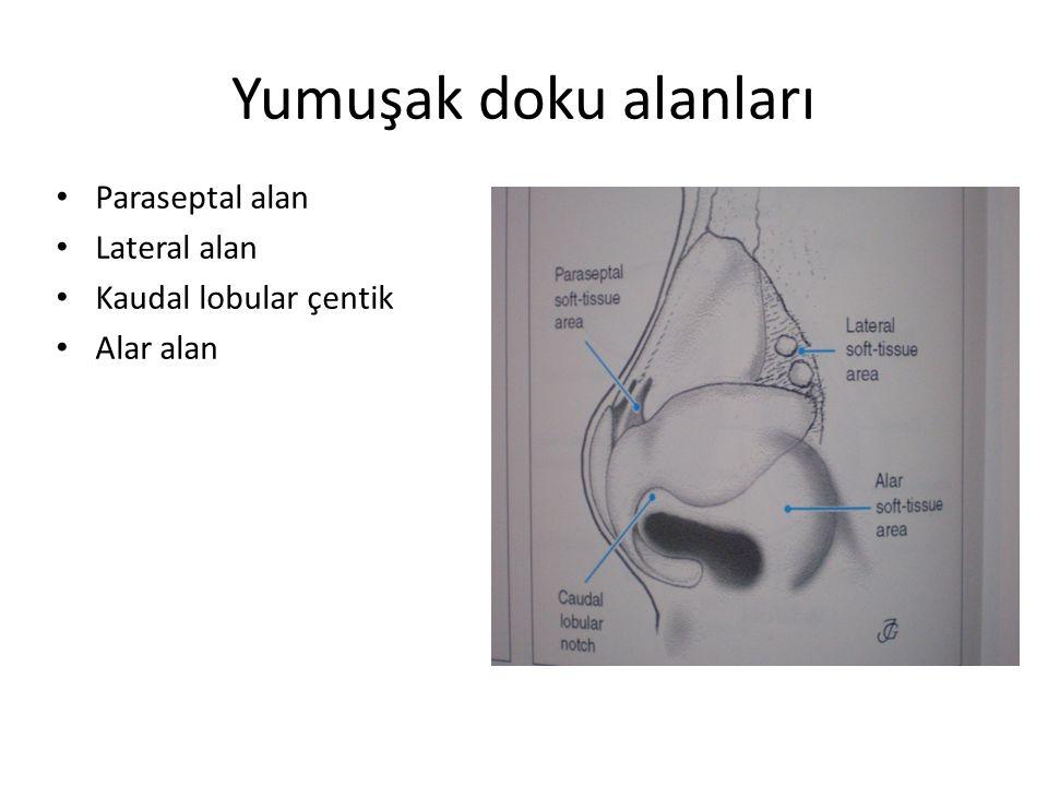 Yumuşak doku alanları Paraseptal alan Lateral alan Kaudal lobular çentik Alar alan