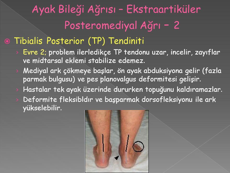  Tibialis Posterior (TP) Tendiniti › Evre 2; problem ilerledikçe TP tendonu uzar, incelir, zayıflar ve midtarsal eklemi stabilize edemez. › Mediyal a