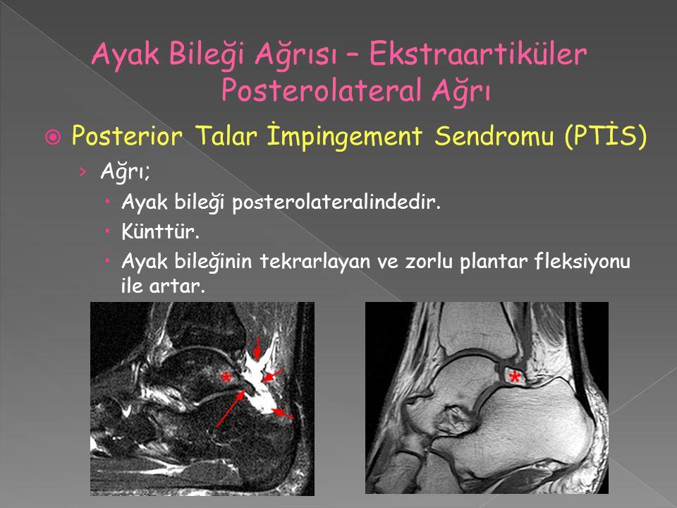  Posterior Talar İmpingement Sendromu (PTİS) › Ağrı;  Ayak bileği posterolateralindedir.  Künttür.  Ayak bileğinin tekrarlayan ve zorlu plantar fl