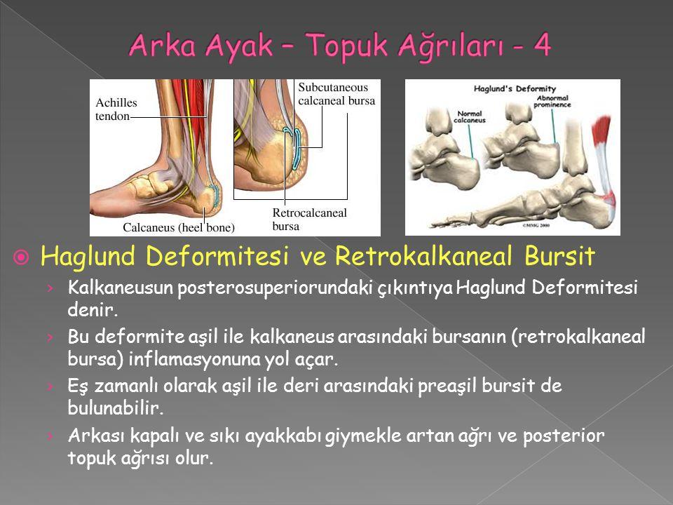  Haglund Deformitesi ve Retrokalkaneal Bursit › Kalkaneusun posterosuperiorundaki çıkıntıya Haglund Deformitesi denir. › Bu deformite aşil ile kalkan