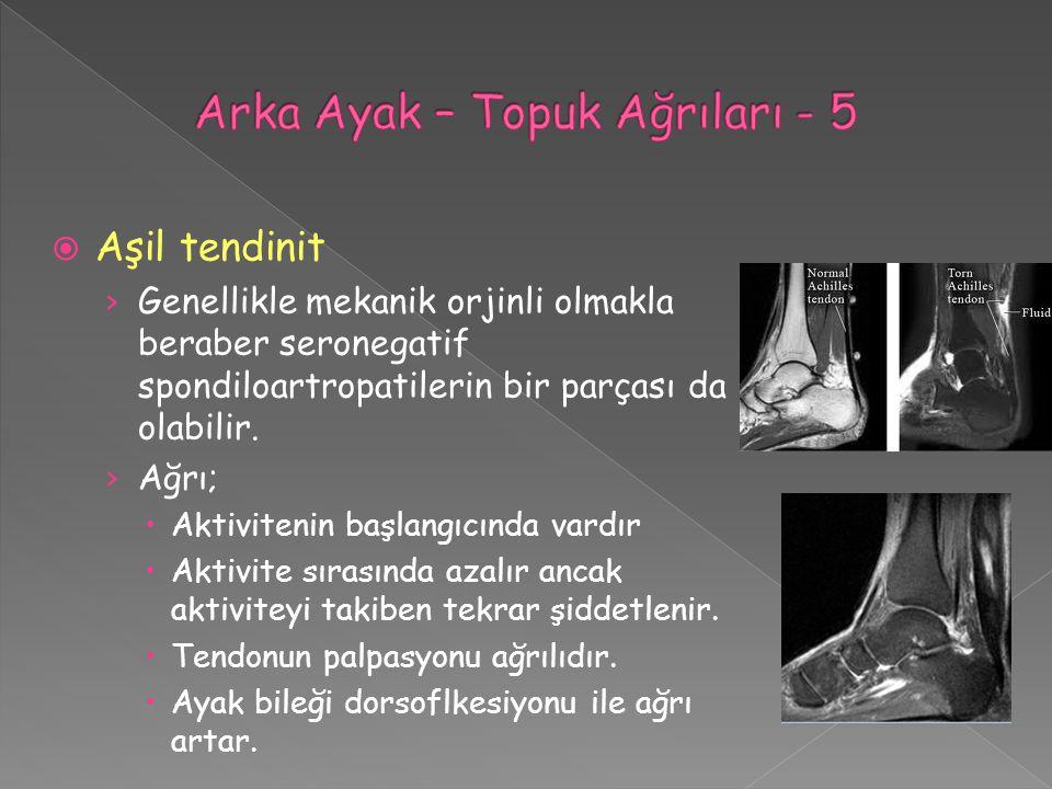  Aşil tendinit › Genellikle mekanik orjinli olmakla beraber seronegatif spondiloartropatilerin bir parçası da olabilir. › Ağrı;  Aktivitenin başlang