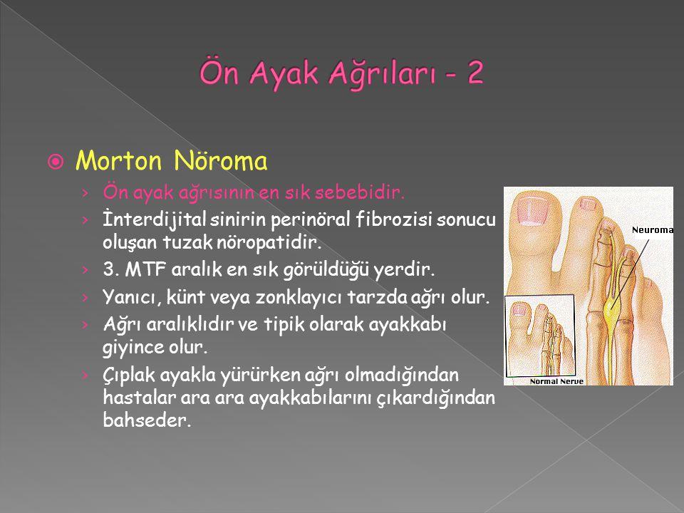  Morton Nöroma › Ön ayak ağrısının en sık sebebidir. › İnterdijital sinirin perinöral fibrozisi sonucu oluşan tuzak nöropatidir. › 3. MTF aralık en s