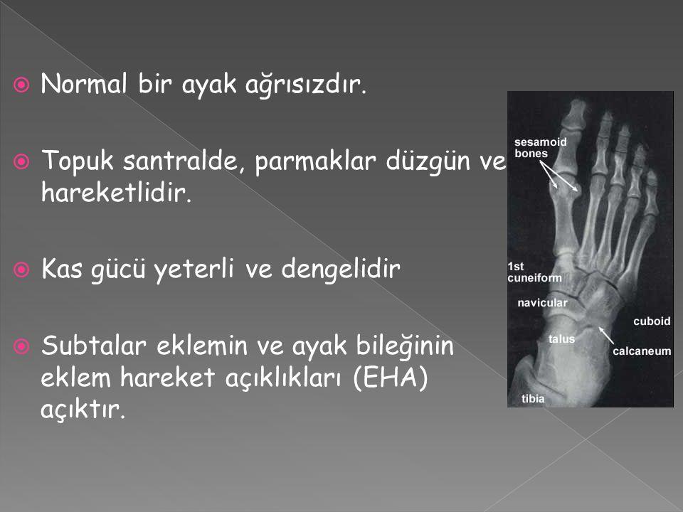  Posterior Talar İmpingement Sendromu (PTİS) › Akut yaralanma, plantar fleksiyon – inversiyon tipindedir.
