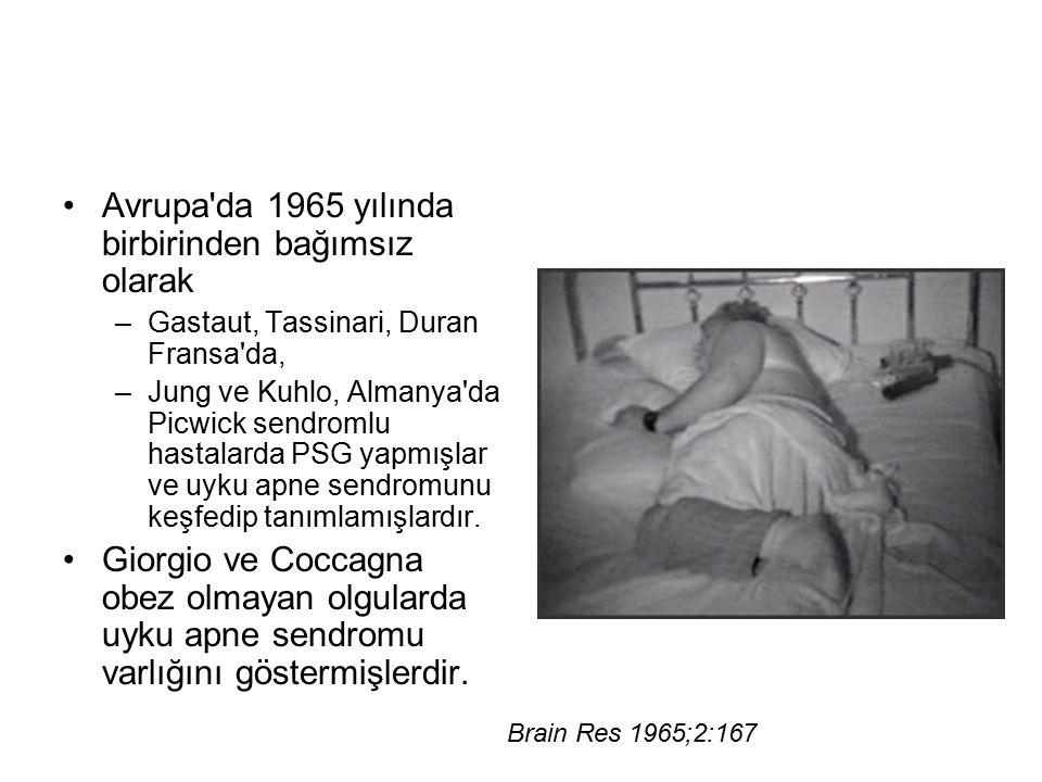 Avrupa'da 1965 yılında birbirinden bağımsız olarak –Gastaut, Tassinari, Duran Fransa'da, –Jung ve Kuhlo, Almanya'da Picwick sendromlu hastalarda PSG y