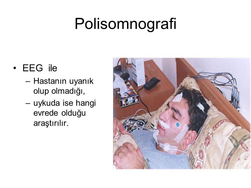 Polisomnografi EEG ile –Hastanın uyanık olup olmadığı, –uykuda ise hangi evrede olduğu araştırılır.