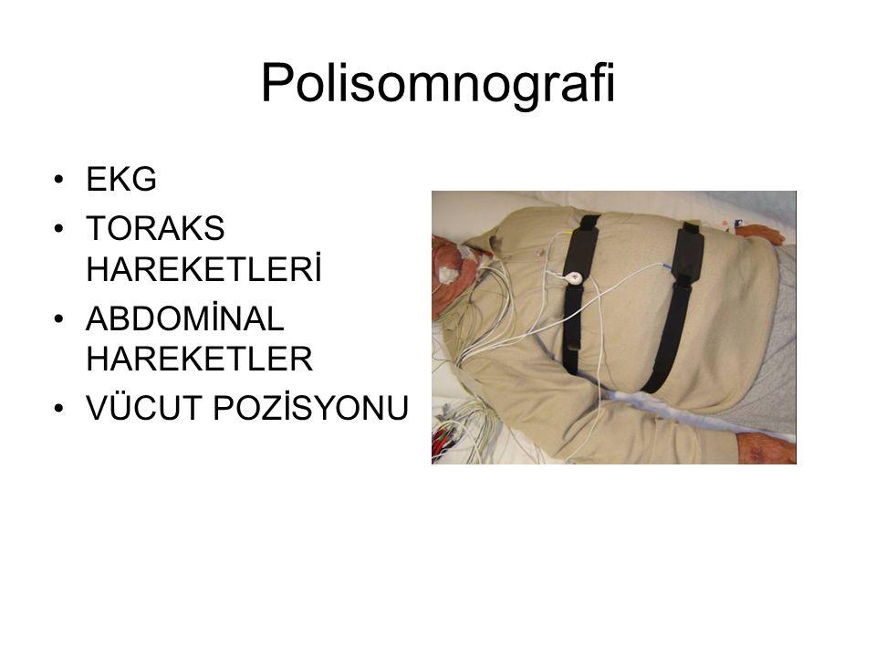 Polisomnografi EKG TORAKS HAREKETLERİ ABDOMİNAL HAREKETLER VÜCUT POZİSYONU