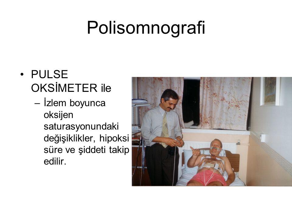 Polisomnografi PULSE OKSİMETER ile –İzlem boyunca oksijen saturasyonundaki değişiklikler, hipoksi süre ve şiddeti takip edilir.