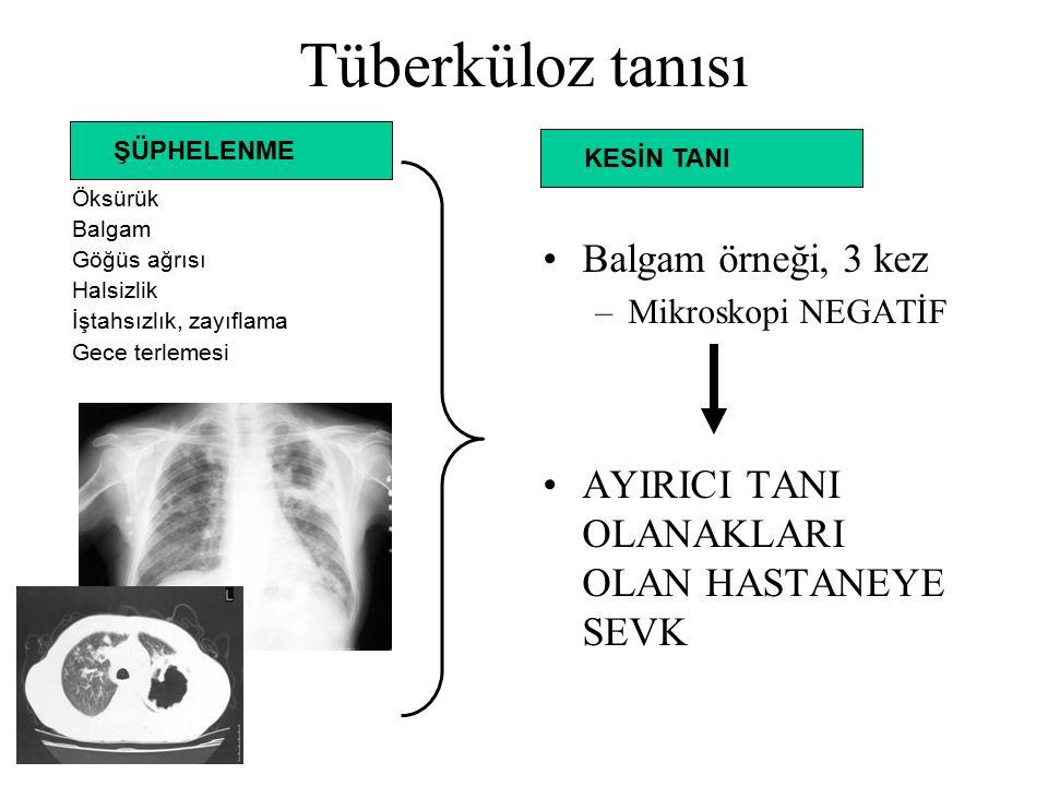 Tüberküloz tanısı Balgam örneği, 3 kez –Mikroskopi NEGATİF AYIRICI TANI OLANAKLARI OLAN HASTANEYE SEVK Öksürük Balgam Göğüs ağrısı Halsizlik İştahsızlık, zayıflama Gece terlemesi ŞÜPHELENME KESİN TANI
