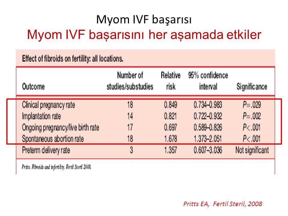 Myom IVF başarısı Myom IVF başarısını her aşamada etkiler Pritts EA, Fertil Steril, 2008