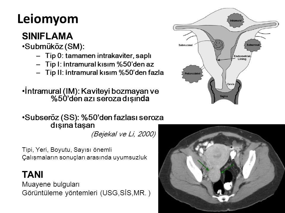 Leiomyom SINIFLAMA Submüköz (SM): – Tip 0: tamamen intrakaviter, saplı – Tip I: i ntramural kısım %50'den az – Tip II: i ntramural kısım %50'den fazla İntramural (IM): Kaviteyi bozmayan ve %50'den azı seroza dışın da Subseröz (SS): %50'den fazlası seroza dışına taşan (Bejekal ve Li, 2000) Tipi, Yeri, Boyutu, Sayısı önemli Çalışmaların sonuçları arasında uyumsuzluk TANI Muayene bulguları Görüntüleme yöntemleri (USG,SİS,MR.