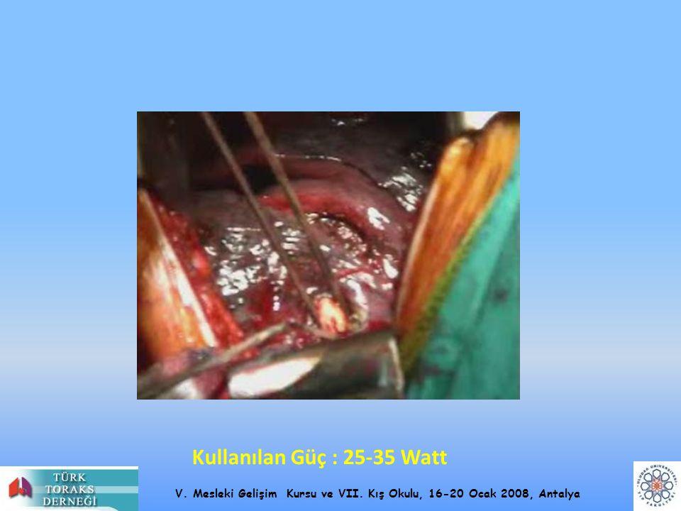 V. Mesleki Gelişim Kursu ve VII. Kış Okulu, 16-20 Ocak 2008, Antalya Kullanılan Güç : 25-35 Watt