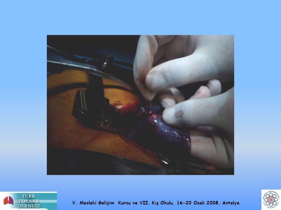 V. Mesleki Gelişim Kursu ve VII. Kış Okulu, 16-20 Ocak 2008, Antalya