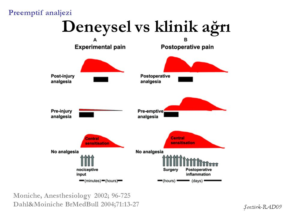 Şentürk-RAD09 Deneysel vs klinik ağrı Preemptif analjezi Moniche, Anesthesiology 2002; 96-725 Dahl&Moiniche BrMedBull 2004;71:13-27