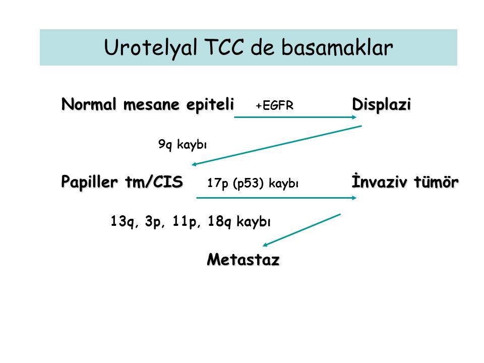 Urotelyal TCC de basamaklar Normal mesane epiteliDisplazi Normal mesane epiteli +EGFR Displazi 9q kaybı Papiller tm/CISİnvaziv tümör Papiller tm/CIS 17p (p53) kaybı İnvaziv tümör 13q, 3p, 11p, 18q kaybıMetastaz