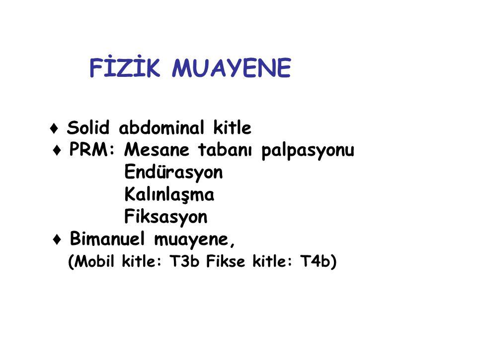 ♦ Solid abdominal kitle ♦ PRM: Mesane tabanı palpasyonu Endürasyon Kalınlaşma Fiksasyon ♦ Bimanuel muayene, (Mobil kitle: T3b Fikse kitle: T4b) FİZİK