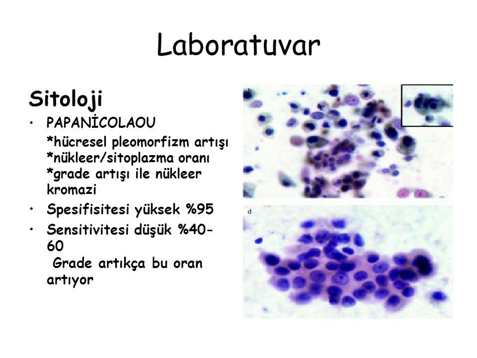 Laboratuvar Sitoloji PAPANİCOLAOU *hücresel pleomorfizm artışı *nükleer/sitoplazma oranı *grade artışı ile nükleer kromazi Spesifisitesi yüksek %95 Sensitivitesi düşük %40- 60 Grade artıkça bu oran artıyor