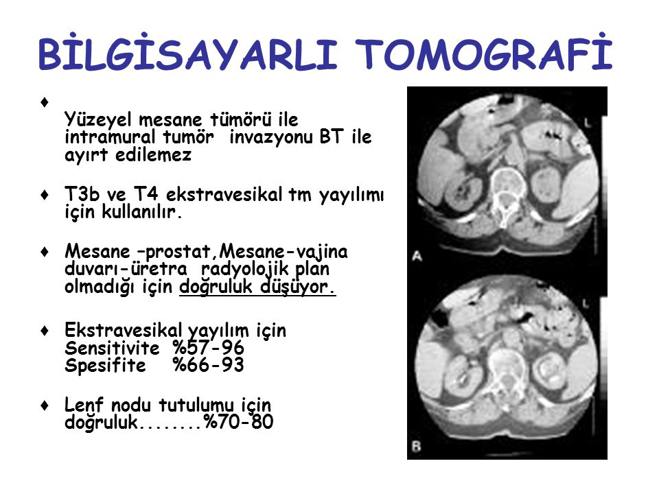 BİLGİSAYARLI TOMOGRAFİ ♦ Yüzeyel mesane tümörü ile intramural tumör invazyonu BT ile ayırt edilemez ♦ T3b ve T4 ekstravesikal tm yayılımı için kullanı