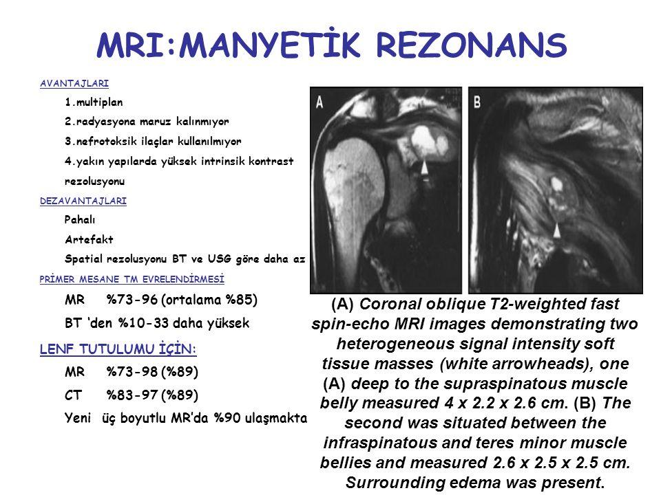 MRI:MANYETİK REZONANS AVANTAJLARI 1.multiplan 2.radyasyona maruz kalınmıyor 3.nefrotoksik ilaçlar kullanılmıyor 4.yakın yapılarda yüksek intrinsik kontrast rezolusyonu DEZAVANTAJLARI Pahalı Artefakt Spatial rezolusyonu BT ve USG göre daha az PRİMER MESANE TM EVRELENDİRMESİ MR %73-96 (ortalama %85) BT 'den %10-33 daha yüksek LENF TUTULUMU İÇİN: MR %73-98 (%89) CT%83-97 (%89) Yeni üç boyutlu MR'da %90 ulaşmakta (A) Coronal oblique T2-weighted fast spin-echo MRI images demonstrating two heterogeneous signal intensity soft tissue masses (white arrowheads), one (A) deep to the supraspinatous muscle belly measured 4 x 2.2 x 2.6 cm.