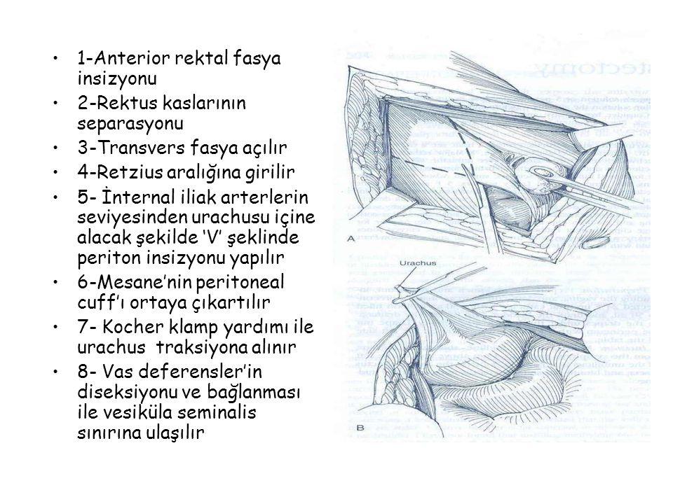 1-Anterior rektal fasya insizyonu 2-Rektus kaslarının separasyonu 3-Transvers fasya açılır 4-Retzius aralığına girilir 5- İnternal iliak arterlerin se
