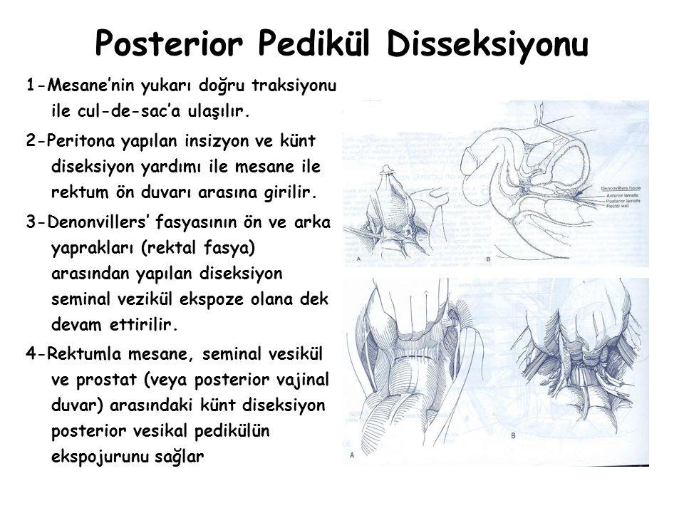 Posterior Pedikül Disseksiyonu 1-Mesane'nin yukarı doğru traksiyonu ile cul-de-sac'a ulaşılır. 2-Peritona yapılan insizyon ve künt diseksiyon yardımı