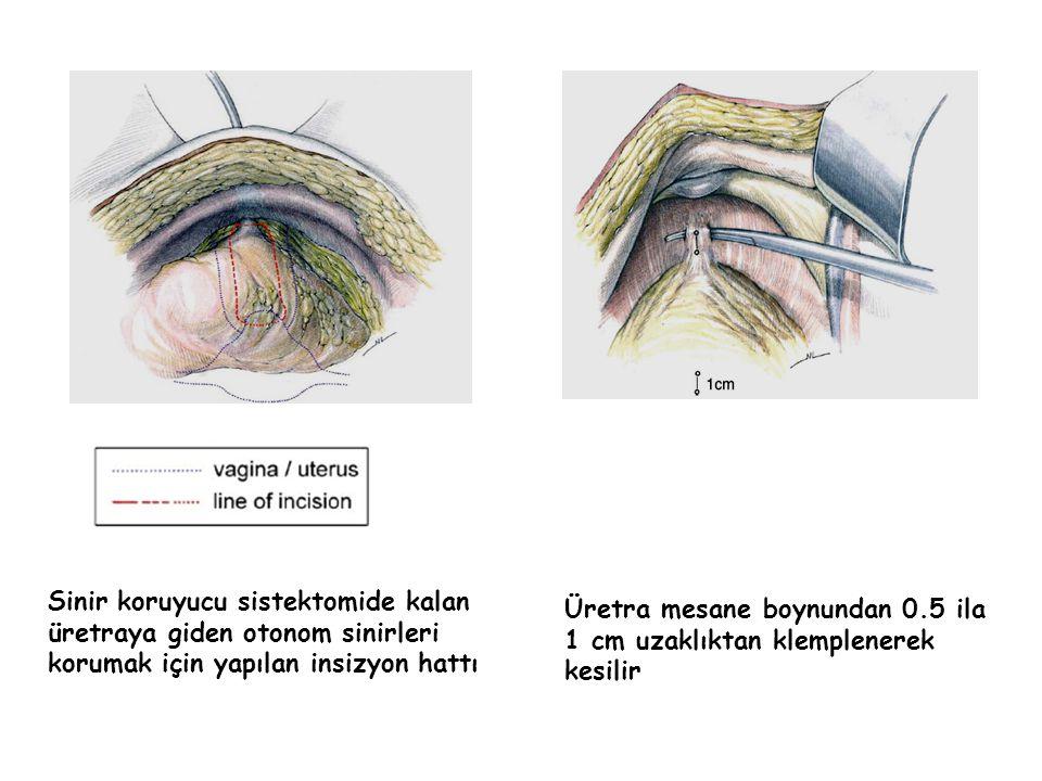 Sinir koruyucu sistektomide kalan üretraya giden otonom sinirleri korumak için yapılan insizyon hattı Üretra mesane boynundan 0.5 ila 1 cm uzaklıktan klemplenerek kesilir