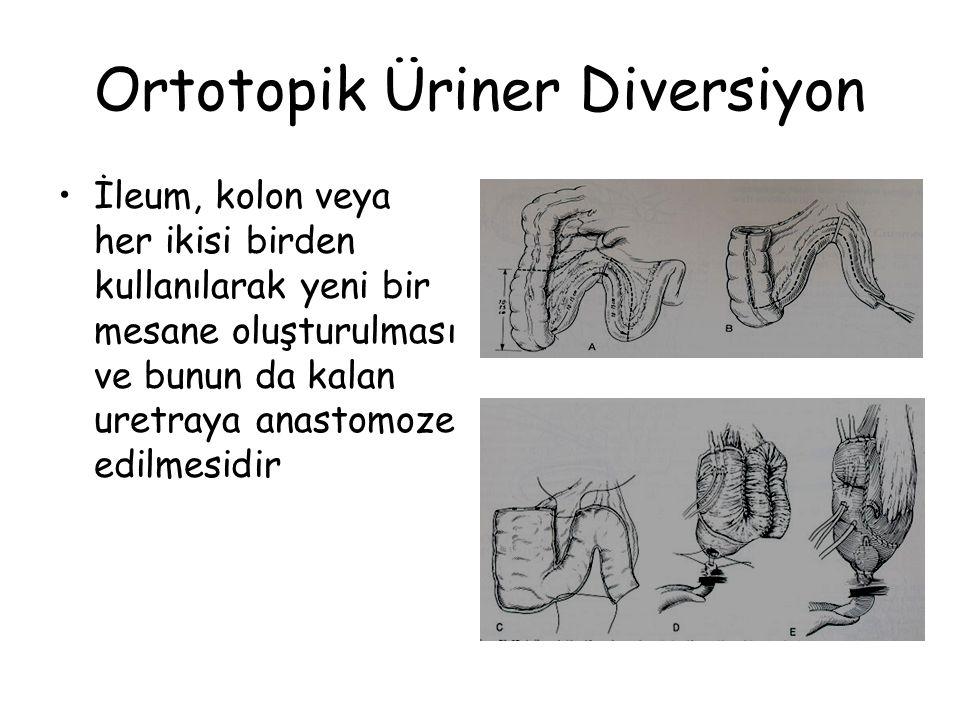 Ortotopik Üriner Diversiyon İleum, kolon veya her ikisi birden kullanılarak yeni bir mesane oluşturulması ve bunun da kalan uretraya anastomoze edilmesidir