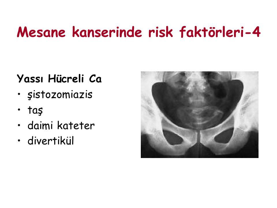 Mesane kanserinde risk faktörleri-4 Yassı Hücreli Ca şistozomiazis taş daimi kateter divertikül