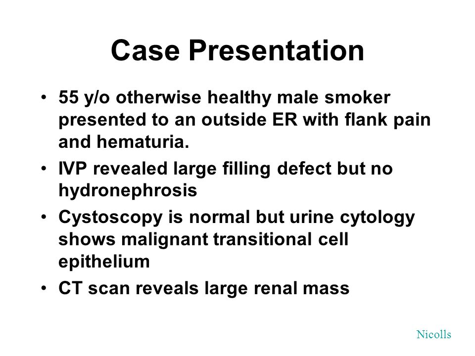 Case Presentation 55 y/o otherwise healthy male smoker presented to an outside ER with flank pain and hematuria. IVP revealed large filling defect but