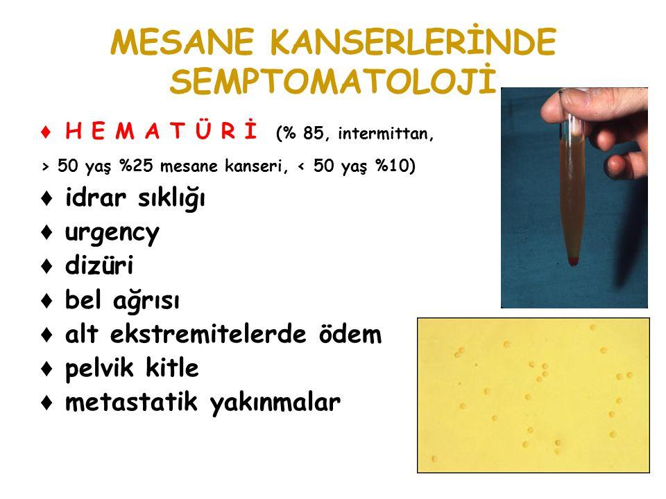 BİLGİSAYARLI TOMOGRAFİ ♦ Yüzeyel mesane tümörü ile intramural tumör invazyonu BT ile ayırt edilemez ♦ T3b ve T4 ekstravesikal tm yayılımı için kullanılır.