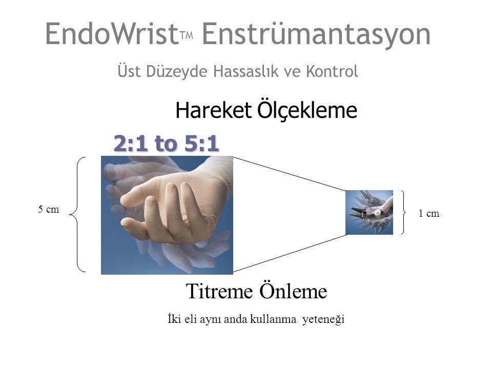 5 cm 1 cm 2:1 to 5:1 EndoWrist TM Enstrümantasyon Üst Düzeyde Hassaslık ve Kontrol Hareket Ölçekleme Titreme Önleme İki eli aynı anda kullanma yeteneğ