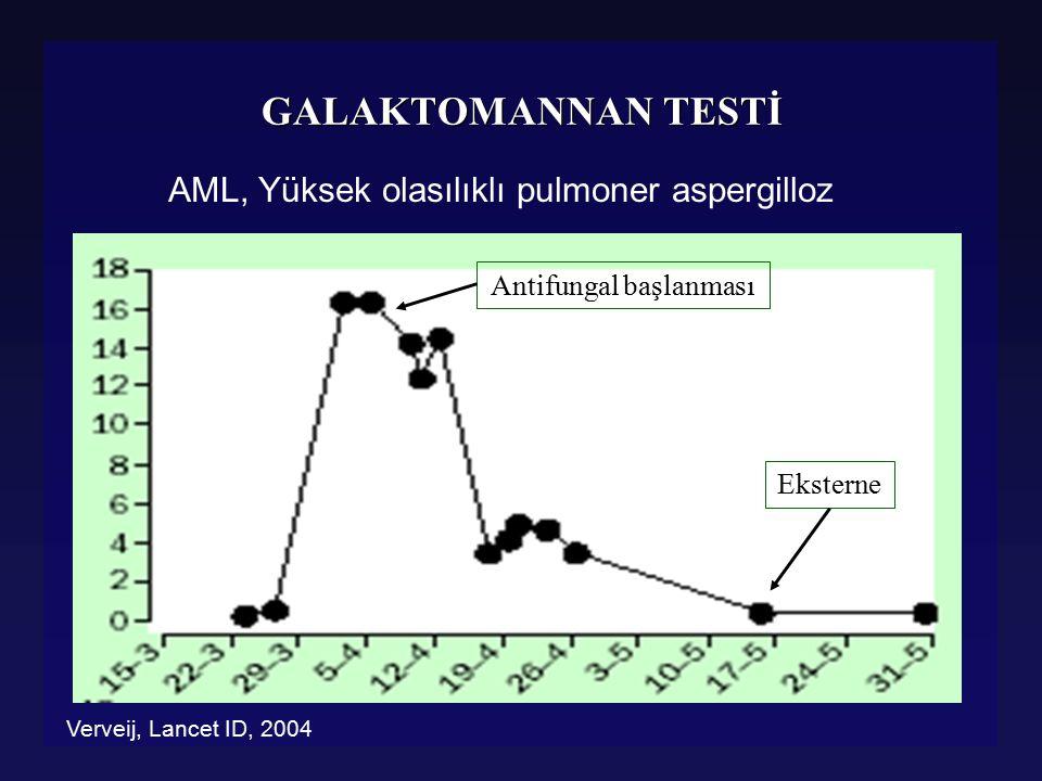 61 yaşında bayan hasta, B hücreli ALL l 01 / 07 / 2006 da kemoterapiye başlanıyor l 05 / 07 de nötropenik ateş: Pip/Tazo + Amikacin l 10 / 07 de yeni gelişen ateş: Karbapenem l 12 / 07 de kan kültüründe Enterococcus Faecium l Teikoplanin başlandı l 20 / 07 de yeniden ateş, öksürük ve hemoptizi, CT de buzlu cam ve nodüler infiltrasyonlar l Bronkoskopiyi tolere edemedi, bagam kx: Candida kruzei l Caspofungin eklendi l 01 / 07 / 2006 da kemoterapiye başlanıyor l 05 / 07 de nötropenik ateş: Pip/Tazo + Amikacin l 10 / 07 de yeni gelişen ateş: Karbapenem l 12 / 07 de kan kültüründe Enterococcus Faecium l Teikoplanin başlandı l 20 / 07 de yeniden ateş, öksürük ve hemoptizi, CT de buzlu cam ve nodüler infiltrasyonlar l Bronkoskopiyi tolere edemedi, bagam kx: Candida kruzei l Caspofungin eklendi