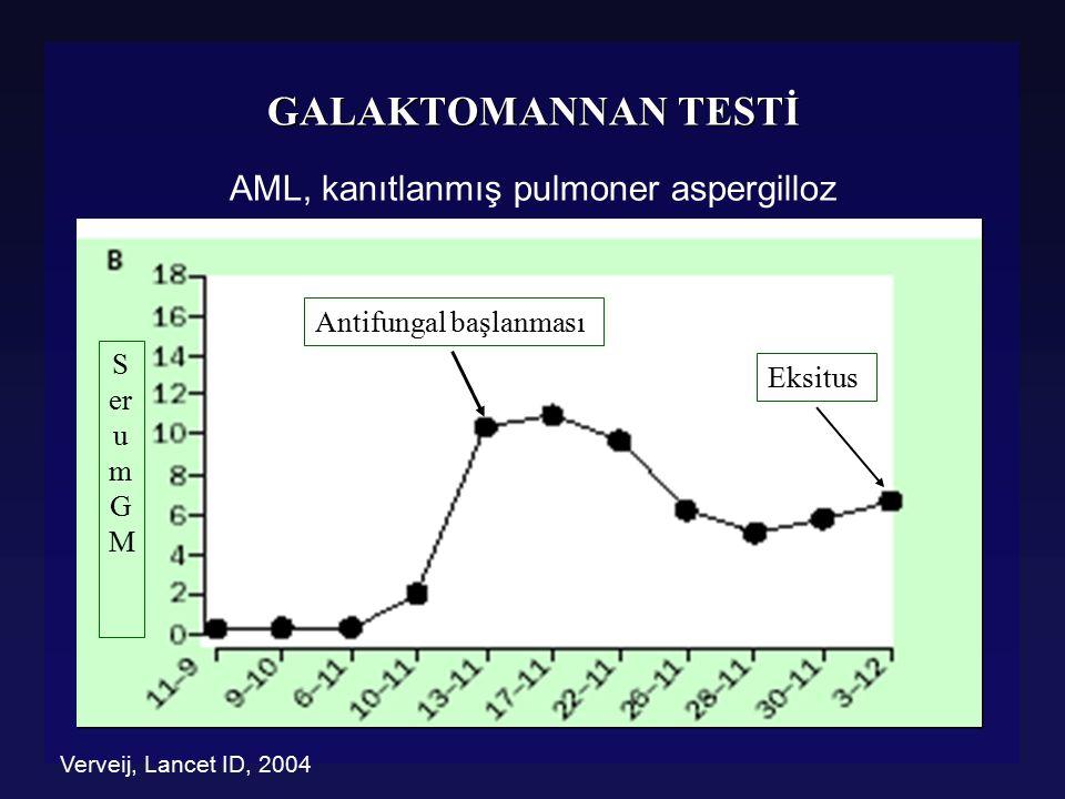 GALAKTOMANNAN TESTİ l Yalancı pozitiflik nedenleri l GM çeşitli besinlerde bulunabilir l tahıllar, prinç, makarna, konserve ve katkı maddeleri l Barsaklardan translokasyon l Penicillium ve Paecilomyces türleri ile çapraz rxn l Bazı antibiyotikler (Pip/tazo, amox/clav) l Bifidobacterium türleri (süt ve süt ürünleri) l Yalancı pozitiflik nedenleri l GM çeşitli besinlerde bulunabilir l tahıllar, prinç, makarna, konserve ve katkı maddeleri l Barsaklardan translokasyon l Penicillium ve Paecilomyces türleri ile çapraz rxn l Bazı antibiyotikler (Pip/tazo, amox/clav) l Bifidobacterium türleri (süt ve süt ürünleri) Verweij P, ICAAC 2003, Chicago - Ansorg R, J Clin Microb, 1997 Sulahian A, ICAAC 2003, Chicago - Viscoli C, CID 2004.
