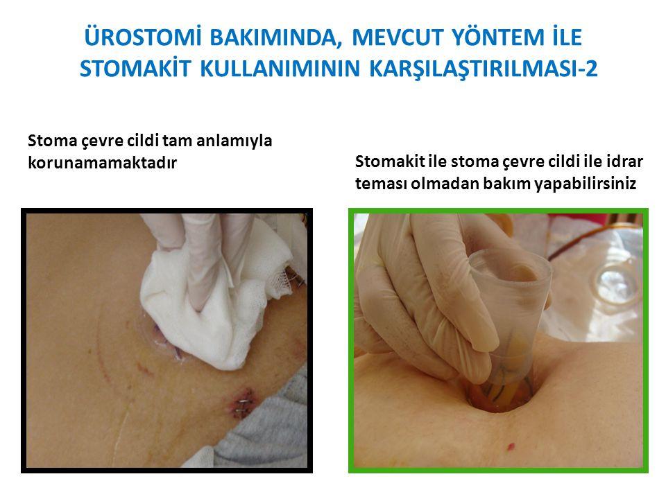 ÜROSTOMİ BAKIMINDA, MEVCUT YÖNTEM İLE STOMAKİT KULLANIMININ KARŞILAŞTIRILMASI-2 Stoma çevre cildi tam anlamıyla korunamamaktadır Stomakit ile stoma çe