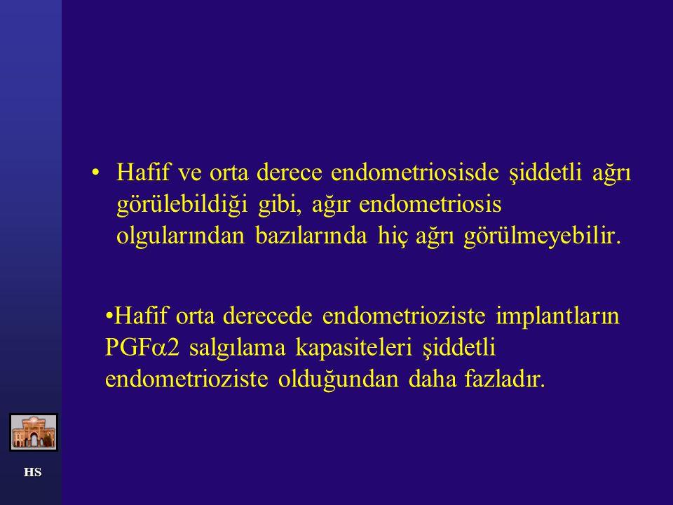 HS SONUÇ Erken evre endometriosiz bir hastalık mı