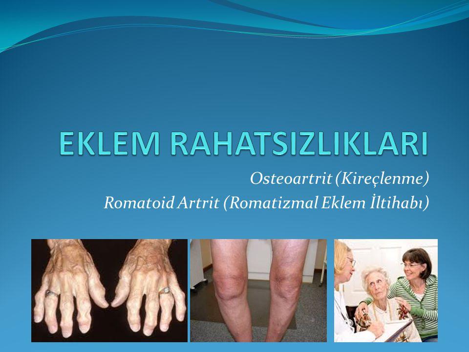 Osteoartrit (Kireçlenme) Romatoid Artrit (Romatizmal Eklem İltihabı)